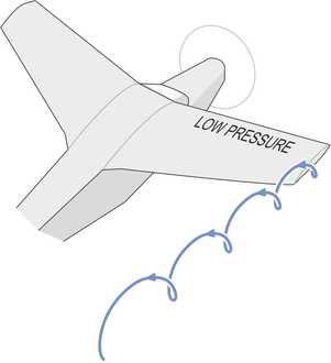Wingvortex